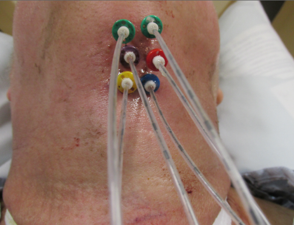 Interstitial brachytherapy catheters for base of tongue treatment